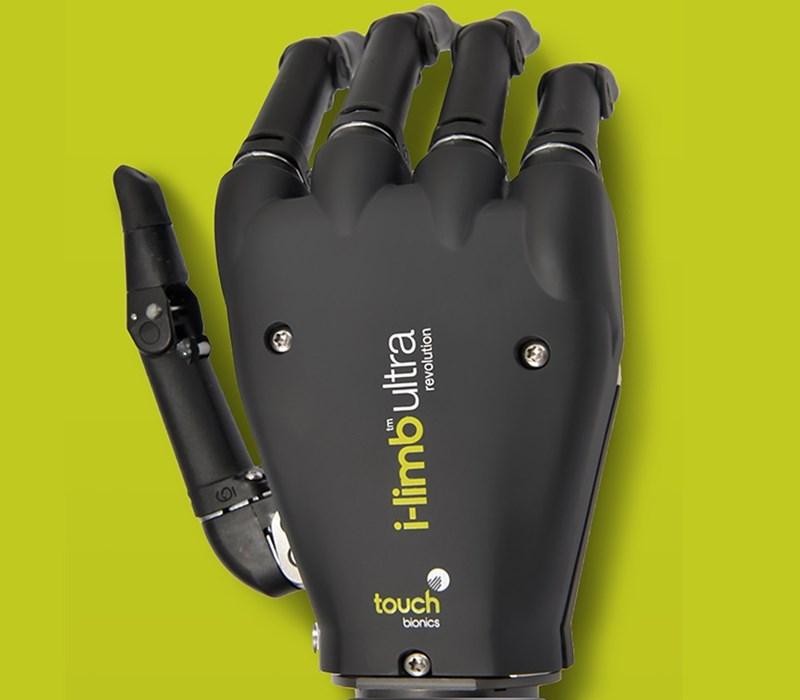 Approach Touch Bionics - i-limb ultra